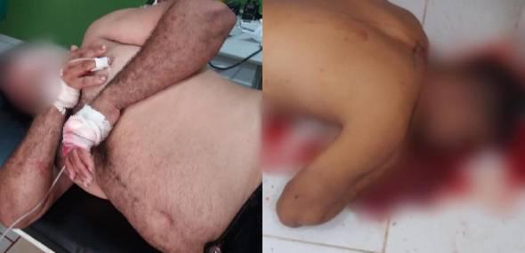 Assassinato e baleamento no Distrito de Moraes de Almeida